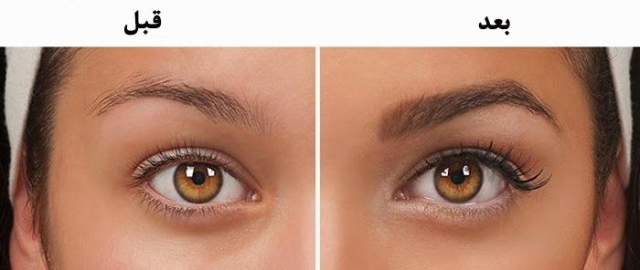 kas-ekimi-eyebrow-transplant-afterhair-710x300