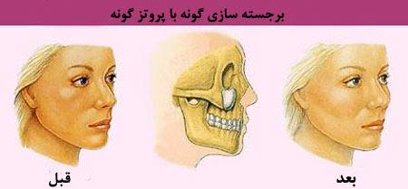 laghrisoorat6